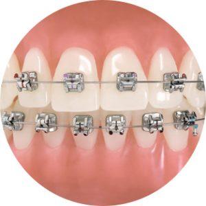 ortodontia_metal