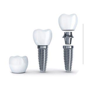 protese_implante