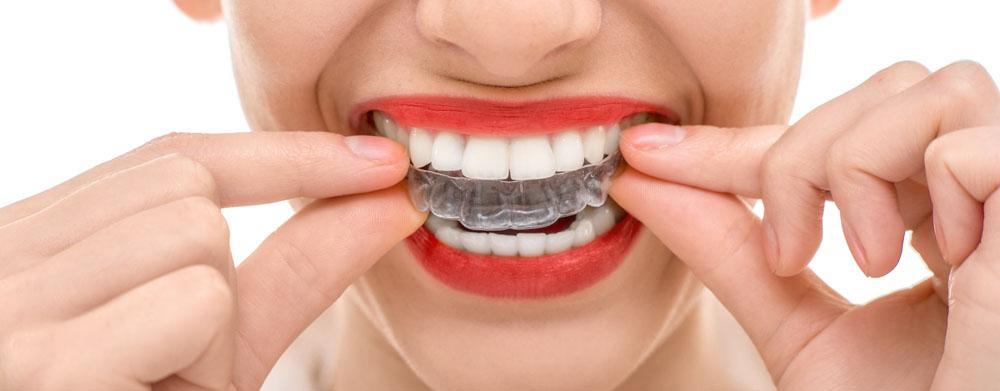 Cuidado Com O Clareamento Dental Sem Acompanhamento De Um Dentista