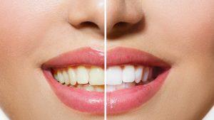 clareamento-dental_sorriso_novo