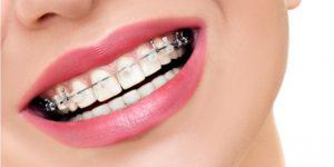 banner-aparelho-ortodontico